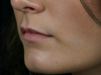 Juvederm Ultra Plus before 296320