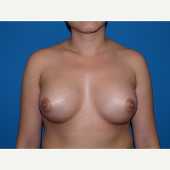 Breast Implants after 3806948