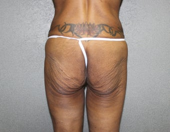 Massive Weight Loss - Buttock Augmentation before 1369117