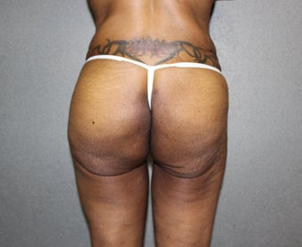 Massive Weight Loss - Buttock Augmentation after 1369117