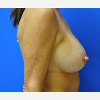 Breast Lift after 3241683