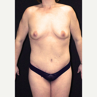 Body Contouring after Lap Band surgery after 3332814