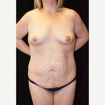 Body Contouring after Lap Band surgery before 3332814
