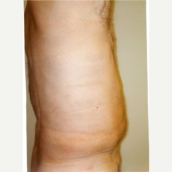 58 year old man treated with Liposuction after 2714039