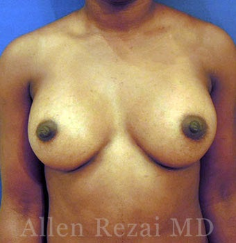 Bilateral Breast Augmentation - Pre- & 4 Years Post-op after 2255567