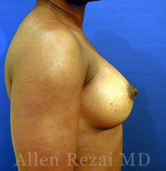 Bilateral Breast Augmentation - Pre- & 4 Years Post-op 2255567