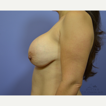 35-44 year old woman treated with Breast Augmentation before 3329331