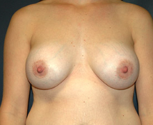 Breast Implants after 3545107