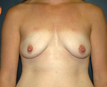 Breast Implants before 3545107