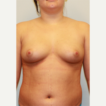 18-24 year old woman treated with Breast Implants before 3027041