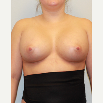 18-24 year old woman treated with Breast Implants after 3027041