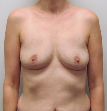 Breast Implant Removal for Implant Rupture and Capsular Contracture after 1445054