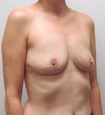 Breast Implant Removal for Implant Rupture and Capsular Contracture 1445054