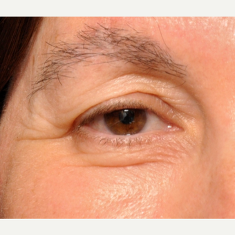 Upper and Lower Eyelids treated w/ Sciton Erbium Resurfacing Laser before 3793597