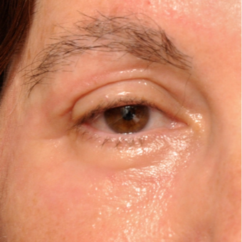 Upper and Lower Eyelids treated w/ Sciton Erbium Resurfacing Laser after 3793597