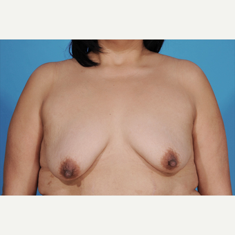 35-44 year old woman treated with Breast Lift with Implants before 3777220