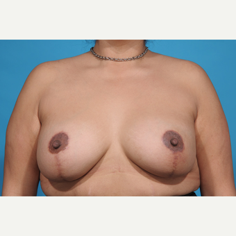 35-44 year old woman treated with Breast Lift with Implants after 3777220