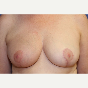46 year old woman treated with a right Breast Reconstruction and left Breast Reduction for symmetry after 3038052