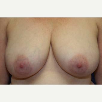 46 year old woman treated with a right Breast Reconstruction and left Breast Reduction for symmetry before 3038052