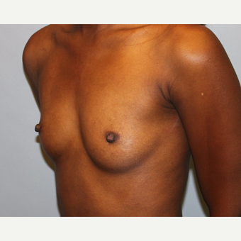 25-34 year old woman treated with Breast Augmentation before 3815616