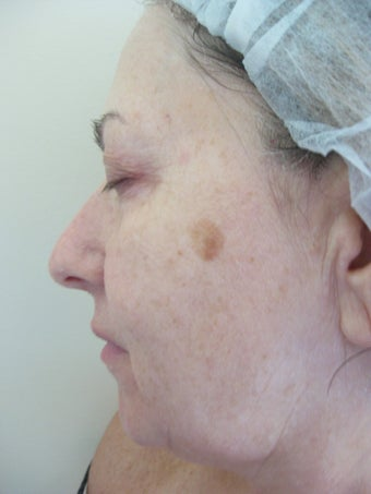 Laser Fractional Resurfacing before 1167084