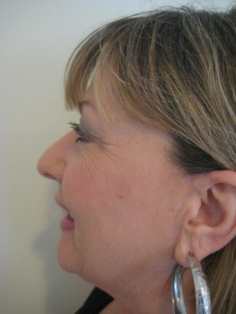 Laser Fractional Resurfacing after 1167084
