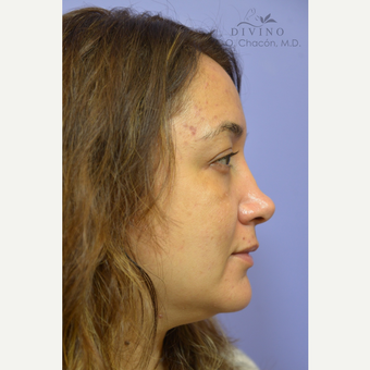35-44 year old woman treated with Cheek Augmentation before 3421934