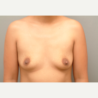 35-44 year old woman treated with Breast Implants before 3732686