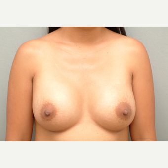 35-44 year old woman treated with Breast Implants after 3732686