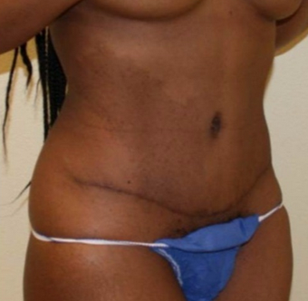 35-44 year old woman treated with Tummy Tuck after 2038478