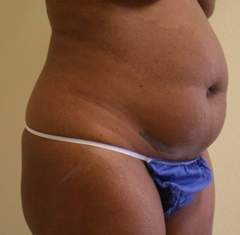 35-44 year old woman treated with Tummy Tuck before 2038478