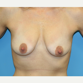 44 year old woman treated with Breast Augmentation before 3486881