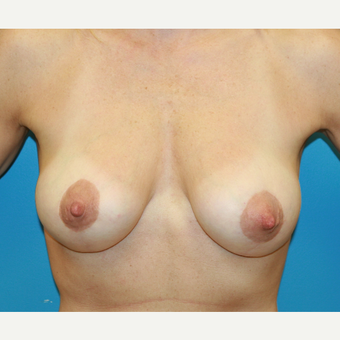 44 year old woman treated with Breast Augmentation after 3486881
