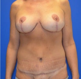 35-44 year old woman treated with Mommy Makeover after 3180073
