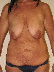 35-44 year old woman treated with Mommy Makeover before 3180073