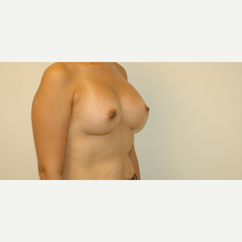 35-44 year old woman treated with Breast Augmentation after 3254639