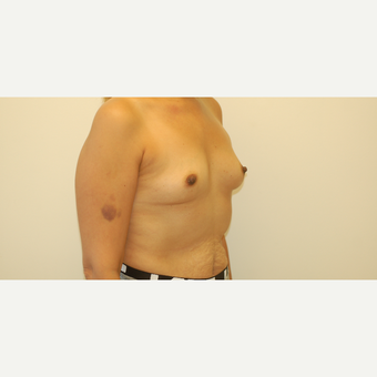 35-44 year old woman treated with Breast Augmentation before 3254639