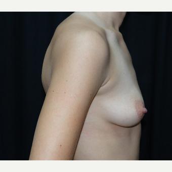 25-34 year old woman treated with Breast Implants before 3304290