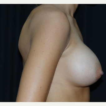 25-34 year old woman treated with Breast Implants after 3304290