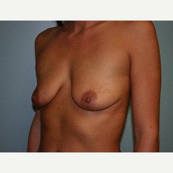 Breast Augmentation before 3560678