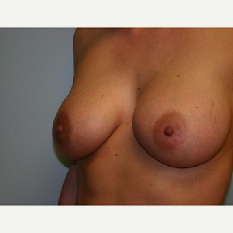 Breast Augmentation after 3560678