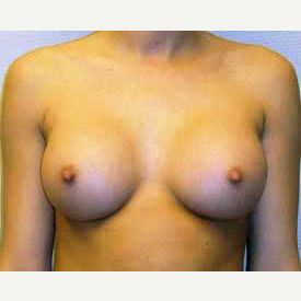 Breast Augmentation after 3680764