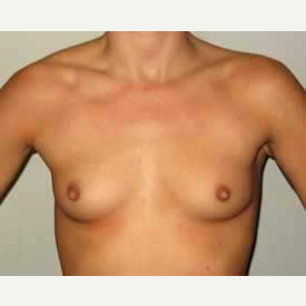 Breast Augmentation before 3680764