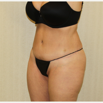 55-64 year old woman treated with Tummy Tuck after 2988704
