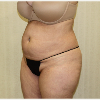 55-64 year old woman treated with Tummy Tuck before 2988704