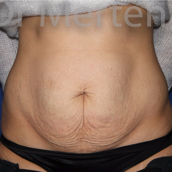 Tummy Tuck before 3599455