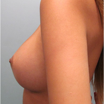 25 year old woman treated with Breast Augmentation after 3468366