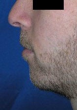 Chin Implant before 3164314