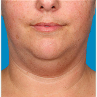 "25-34 year old woman treated with Kybella for corruption of sub mental fullness /""double chin"" before 2334978"