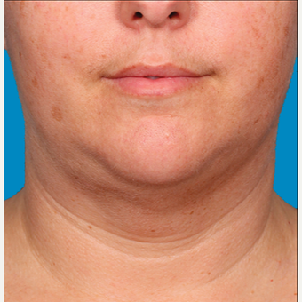"25-34 year old woman treated with Kybella for corruption of sub mental fullness /""double chin"" after 2334978"